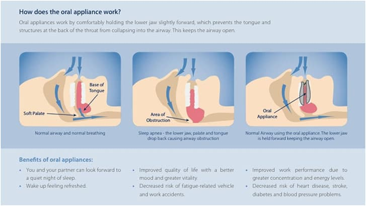how-oral-appliance-work